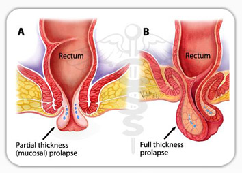 Pelvic Floor Disorders Include Prolapse Of The Womb Or Parts Of The Vagina,  Incontinence Of Urine And Sometimes Incontinence Of Faeces.